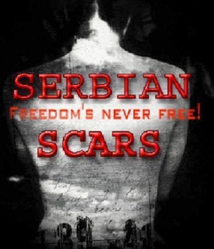 Шрам Сербии. Обложка с сайта keep4u.ru